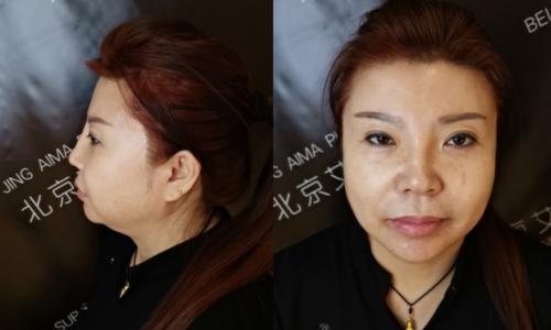 丁小邦博士:骨粉隆鼻如何用微创的方法取出